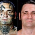 Reformed white supremacist racist removes tatoos – in a series of very excruciating surgeries  This week I was reminded of Bryon Widner, a FORMER skinhead who erased his racist past...